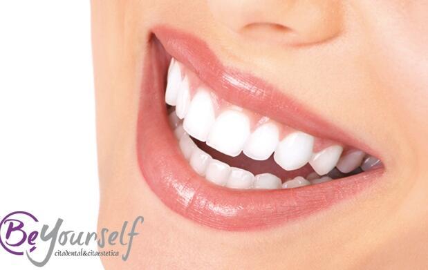 Tratamiento dental con limpieza y pulido