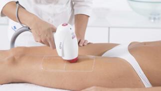 6 sesiones depilación láser piernas completas, axilas e ingles